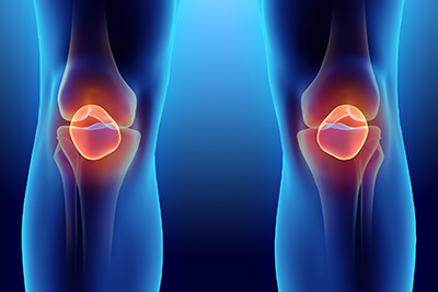Torn Meniscus Stem Cell Treatment in Midland Park, NJ